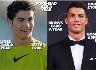 Football Stars Before After Plastic Surgery