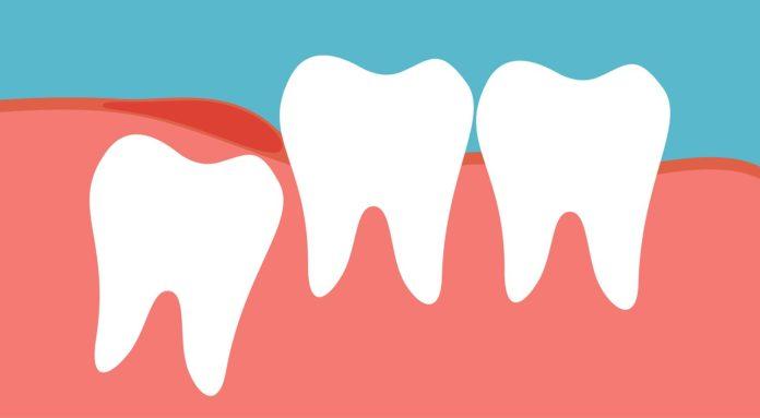 Wisdom Tooth Cavity