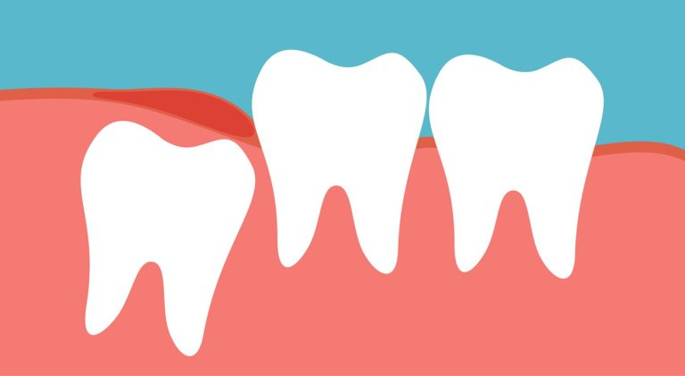 What Should You Do About a Wisdom Tooth Cavity?