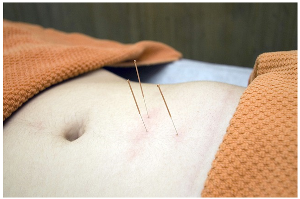 Unplug Hour Acupuncture: Finding Experts in Vancouver BC Canada